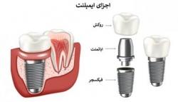 معرفی دکتر لمینت دندان و دکتر ایمپلنت دندان در یوسف آباد تهران | طب سنتی